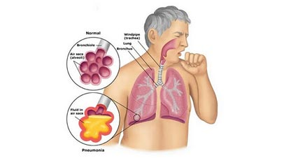 Bronchial Pneumonia