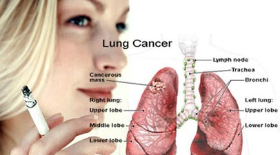 lung cancer symptoms archives - CoughingUpBlood net