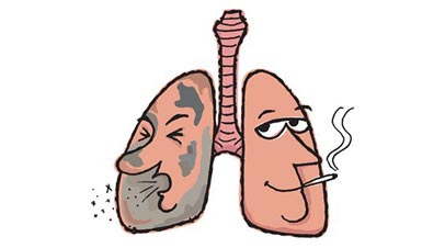 Signs of Lung Cancer